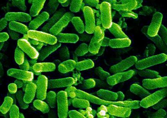 E coli  Symptoms and causes  Mayo Clinic